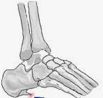 Foot showing bony spur